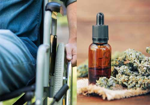 CBD Oil Can Help Patients with Multiple Sclerosis