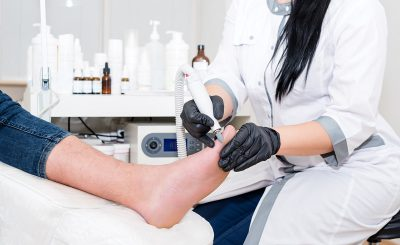 Ingrown Toenail Clinic