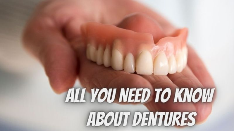 All You Need to Know About Dentures